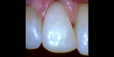 Closeup of repaired tooth and gums