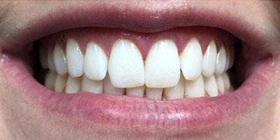 Bright teeth after whitening