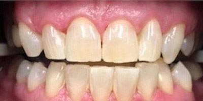 Birght white smile after whitening
