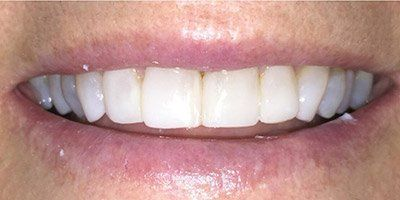 White and healthy teeth after