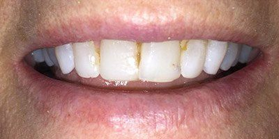 Discolored and decayed teeth before