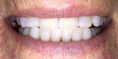 Closed gap between front teeth after