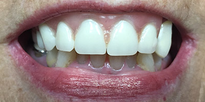 Unnatural looking front tooth treatment