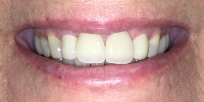 Repaired and brilliant white front teeth