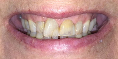 Damaged and dark colored front teeth