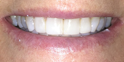 Closeup of white smile after treatment