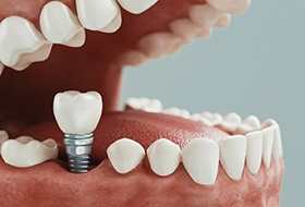 Diagram depicting how dental implants in Corbin are placed