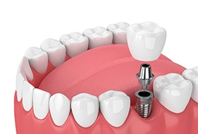 Diagram of single tooth dental implant in Corbin