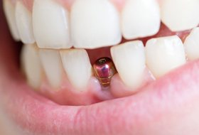A person with a dental implant in their mouth